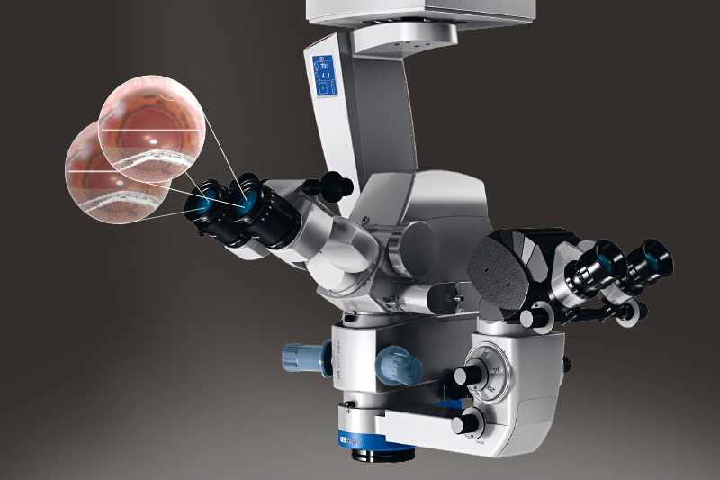 PiP_OCT_Scan_in_Okularen_eingespielt_am_Mikroskop